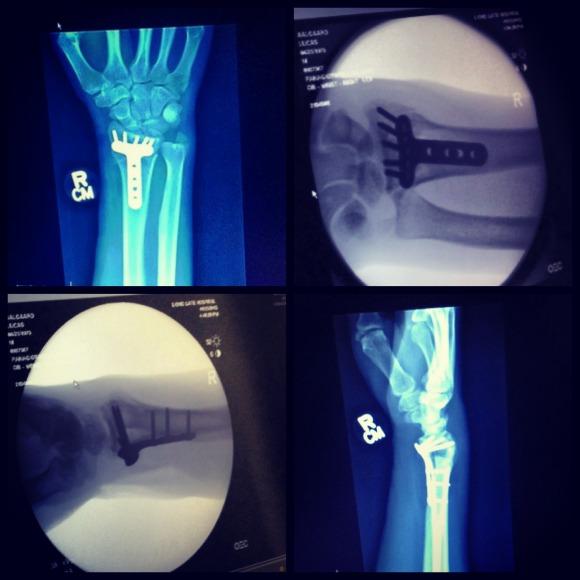 broken-wrist-algard